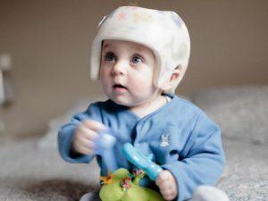 Tete plate : http://www.lapresse.ca/vivre/famille/sante-des-enfants/201710/23/01-5140960-encore-trop-de-bebes-a-la-tete-plate.php